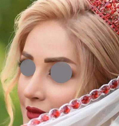 نمونه جراحی بینی دکتر ونون آصفی 8
