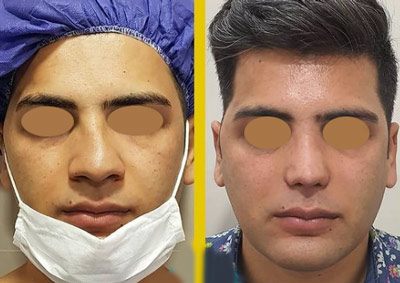 نمونه جراحی بینی دکتر طالع 9
