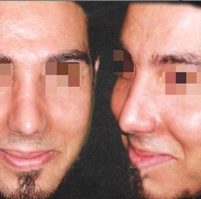 نمونه جراحی بینی دکتر گندمی 9