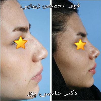 نمونه جراحی بینی دکتر حاتمی پور 8