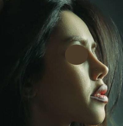 نمونه جراحی بینی دکتر نایب 9
