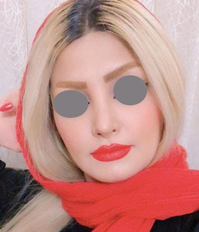 نمونه جراحی بینی دکتر ونون آصفی 9