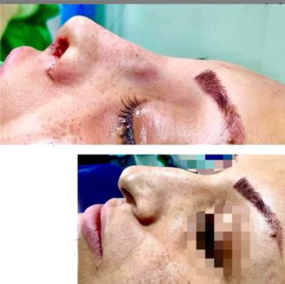 نمونه جراحی بینی دکتر گندمی 10