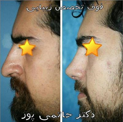 نمونه جراحی بینی دکتر حاتمی پور 9