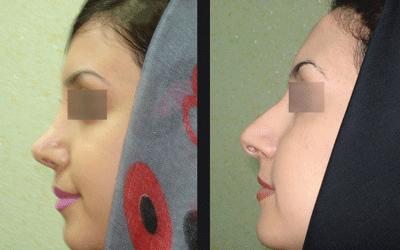 نمونه جراحی بینی دکتر ابراهیمی نژاد 10