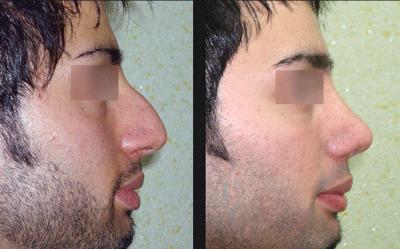 نمونه جراحی بینی دکتر ابراهیمی نژاد 12