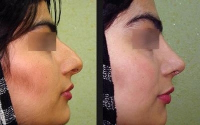نمونه جراحی بینی دکتر ابراهیمی نژاد 2