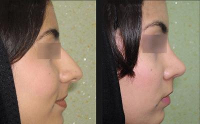 نمونه جراحی بینی دکتر ابراهیمی نژاد 3