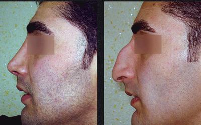 نمونه جراحی بینی دکتر ابراهیمی نژاد 4