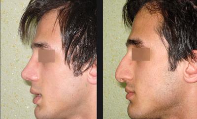 نمونه جراحی بینی دکتر ابراهیمی نژاد 8