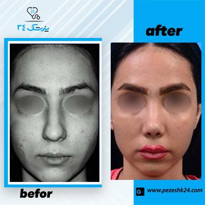 نمونه جراحی بینی دکتر طاهریان 1