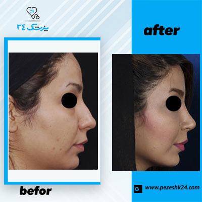 نمونه جراحی بینی دکتر فرخی 1