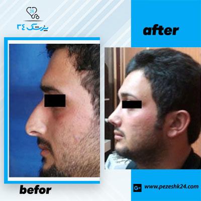 نمونه جراحی بینی دکتر سرمست 1
