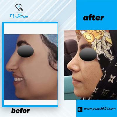 نمونه جراحی بینی دکتر محمدی 1