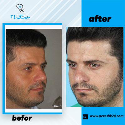 نمونه جراحی بینی دکتر طاهری 1