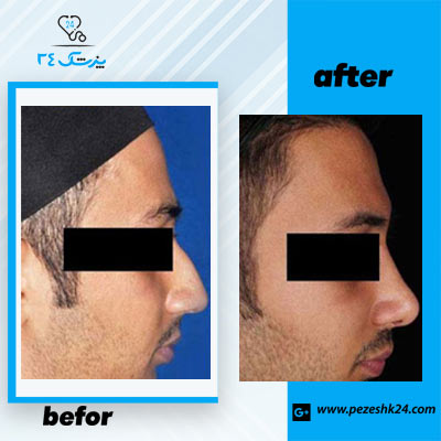 نمونه جراحی بینی دکتر توکلی 4
