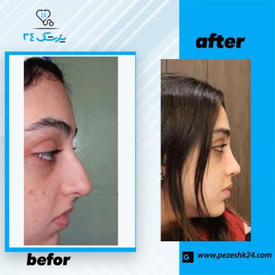 نمونه جراحی بینی دکتر مقدم فرد 1