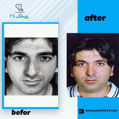 نمونه جراحی بینی دکتر یوشی1