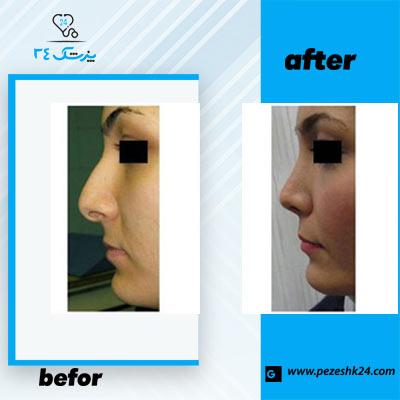 نمونه جراحی بینی دکتر صفایی 1