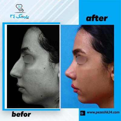 نمونه جراحی بینی دکتر طاهریان 2
