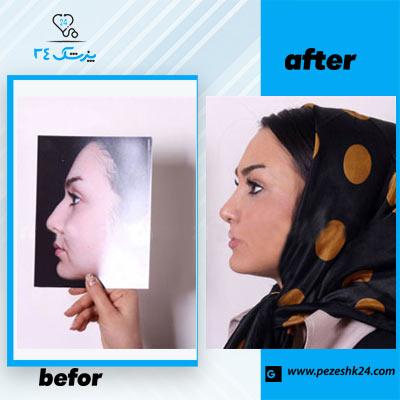 نمونه جراحی بینی دکتر فرخی 2
