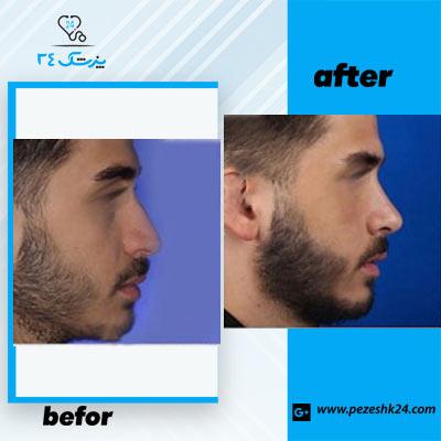نمونه جراحی بینی دکتر حسنانی2