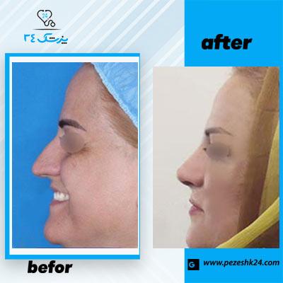 نمونه جراحی بینی دکتر محمدی 2