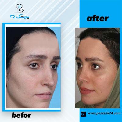 نمونه جراحی بینی دکتر طاهری 2
