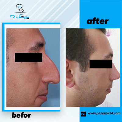 نمونه جراحی بینی دکتر توکلی 3
