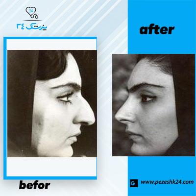 نمونه جراحی بینی دکتر یوشی2
