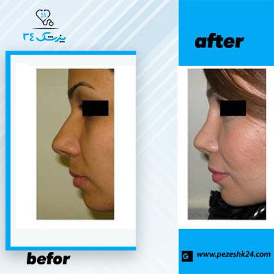 نمونه جراحی بینی دکتر صفایی 2