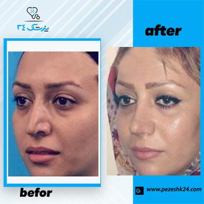 نمونه جراحی بینی دکتر هادی 1