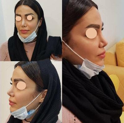 نمونه جراحی بینی دکتر شاهمرادی 4