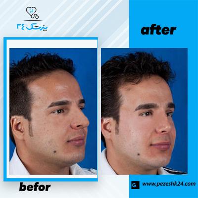 نمونه جراحی بینی دکتر فرخی 3