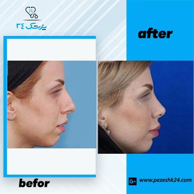 نمونه جراحی بینی دکتر حسنانی3