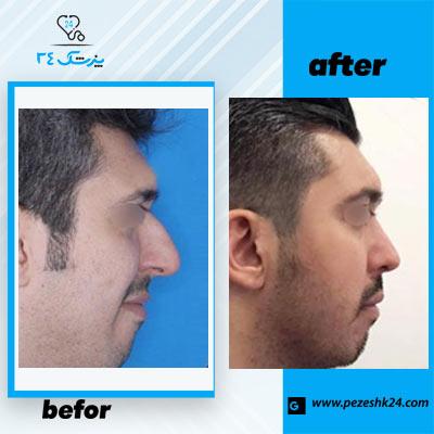 نمونه جراحی بینی دکتر محمدی 3