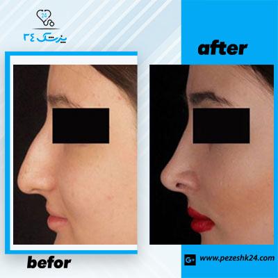 نمونه جراحی بینی دکتر توکلی 2
