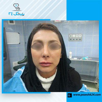 نمونه جراحی بینی دکتر مجلسی 3