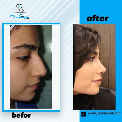 نمونه جراحی بینی دکتر مقدم فرد 3