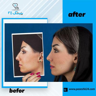 نمونه جراحی بینی دکتر فرخی 4