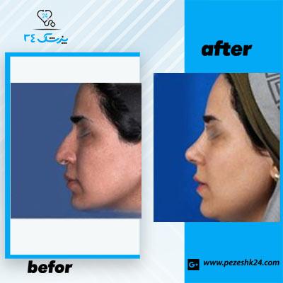 نمونه جراحی بینی دکتر حسنانی4