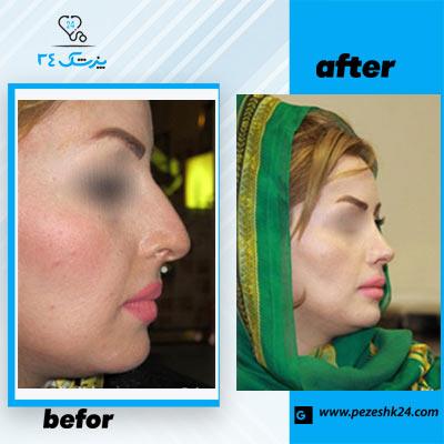 نمونه جراحی بینی دکتر یحیوی4