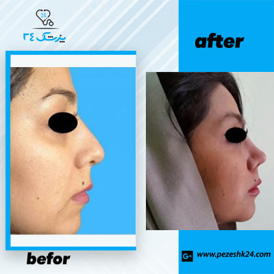 نمونه جراحی بینی دکتر سرمست 4