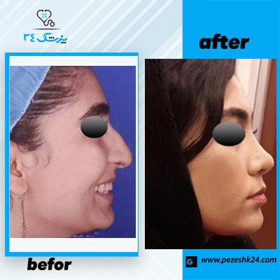 نمونه جراحی بینی دکتر محمدی 4