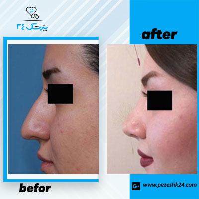 نمونه جراحی بینی دکتر توکلی 1