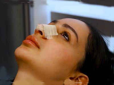 اصلاح فرم بینی بدون جراحی شیراز