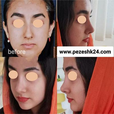 نمونه جراحی بینی دکتر شاهمرادی 8