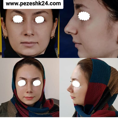 نمونه جراحی بینی دکتر شاهمرادی 9