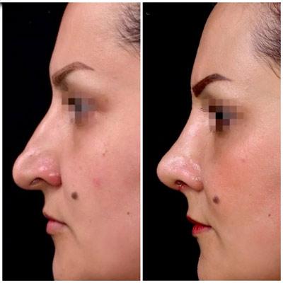 نمونه جراحی بینی دکتر دریانی 1
