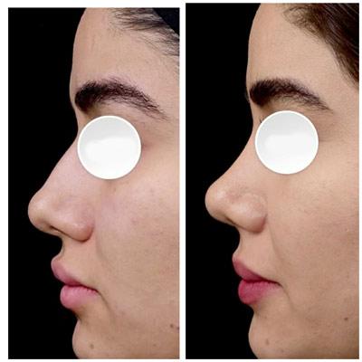 نمونه جراحی بینی دکتر دریانی 3